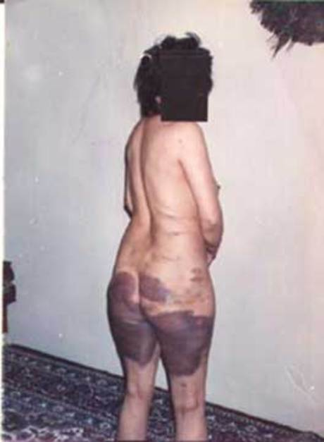 It is the photo of a different woman who was raped and lashed for it