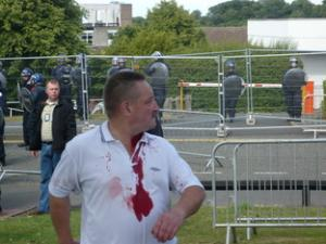 EDL dudley1