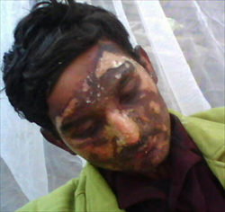Christian burnt by Muslims