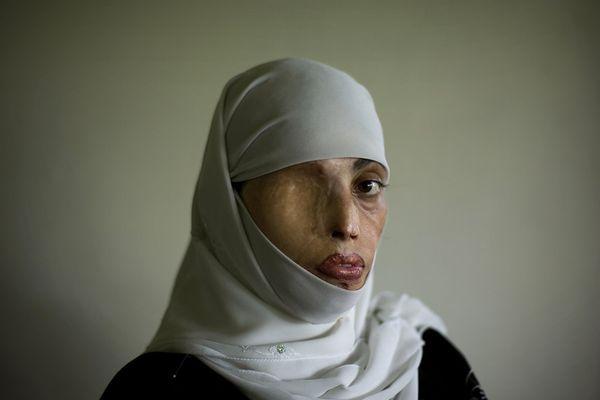 Taliban girl
