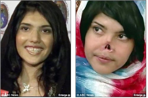 Aesha Mohammadzai_ Afghan, 22, rebuilding her life in the US after having her nose hacked off _ Mail Online_1337608103263