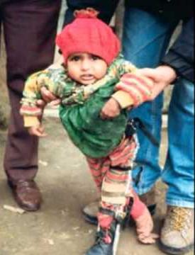 Polio-pakistan